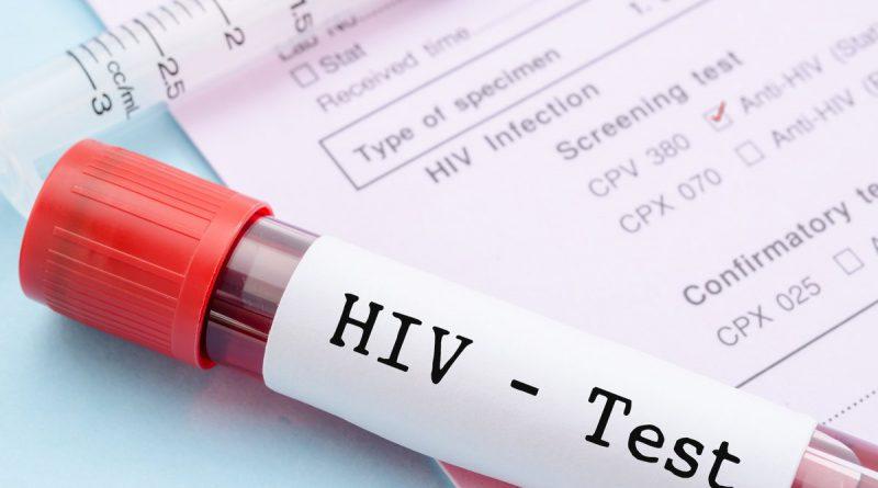 Dezembro vermelho: é possível viver normalmente sendo HIV positivo